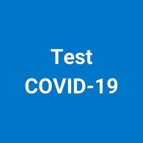 La UPC inicia tests de detección rápida de la COVID-19 en los campus